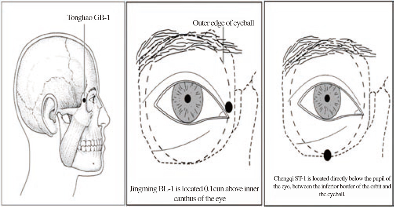 Traumatic optic neuropathy secondary to acupuncture
